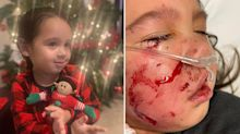 'Like a rag doll': Girl, 3, attacked by 'service' dog in restaurant