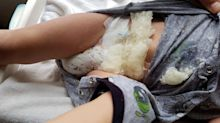Dad's issues warning after son's nappy explodes - leaving him covered in 'dangerous' gelatine crystals