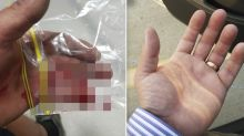 'It went flying': Man's wedding ring rips off finger in freak accident