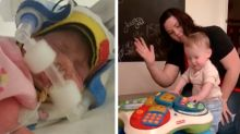 How common household product saved 'miracle' premature baby's skin