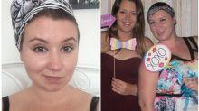 Mulher com alopecia adota novo estilo após perder cabelo