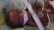 World's tiniest surviving baby who was born same weight as apple is home after five months in hospital