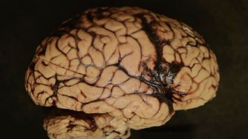 How one flawed study launched CTE hysteria