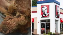 Woman disgusted by surprise find in KFC – but what is it?