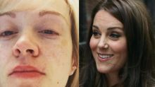 Royal baby latest: Mums make hilarious comparisons between photos of themselves and Kate Middleton after giving birth