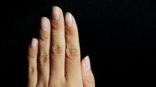 Enfermedades pulmonares y otras condiciones que podrías descubrir mirando tus uñas