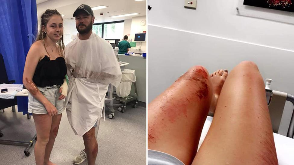 'We could have easily died': Dad and daughter's Bali holiday nightmare