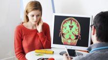 Verdad o mito | Sólo usamos el 10% de nuestro cerebro: ¿qué hay de cierto en esto?