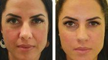 Graciele Lacerda mostra resultado de harmonização facial: 'Satisfeita com o resultado'
