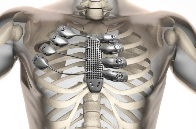 Spanish cancer patient gets a 3D-printed titanium rib cage