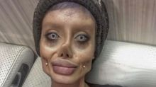 Teenager undergoes major surgery to look like Angelina Jolie