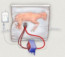 Scientists develop fluid-filled artificial womb to help premature babies
