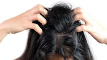 3 tried and tested products that get rid of dandruff