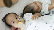 Getrennte siamesische Zwillinge bleiben eng zusammen