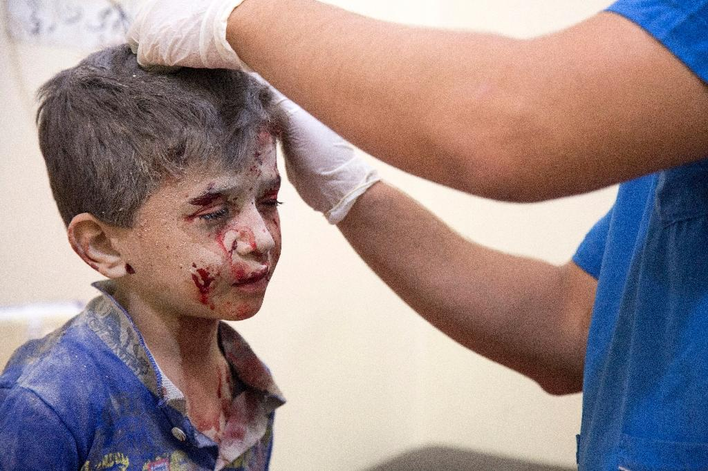 A Syrian boy receives treatment at a makeshift hospital following air strikes on rebel-held eastern areas of Aleppo on September 24, 2016 (AFP Photo/Karam Al-Masri)