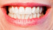 For better teeth, quit snacking and smoking