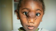 Little boy undergoes world first surgeries to receive new face