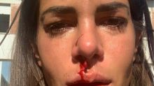 L'ex Temptation Island si è mostrata con il viso sanguinante: il post su Instagram