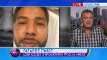 Bizarre twist in American actor Jussie Smollett assault claims