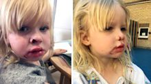 Dog bites off part of toddler's nose during visit to rescue centre