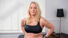 Woman with rare skin condition won't let body-shamers stop her wearing a bikini