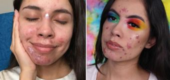 Instagram star's powerful message about acne