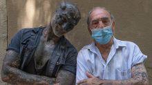 Modification corporelle extrême : après les oreilles, Black Alien se fait retirer le nez