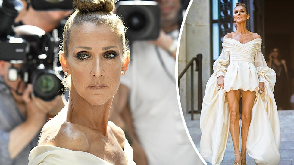 Céline Dion's 'distorted' new photo shoot leaves her 'head bigger than her body'