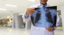 Fresenius Medical's (FMS) Xenios Gets NMPA Nod for ECMO System