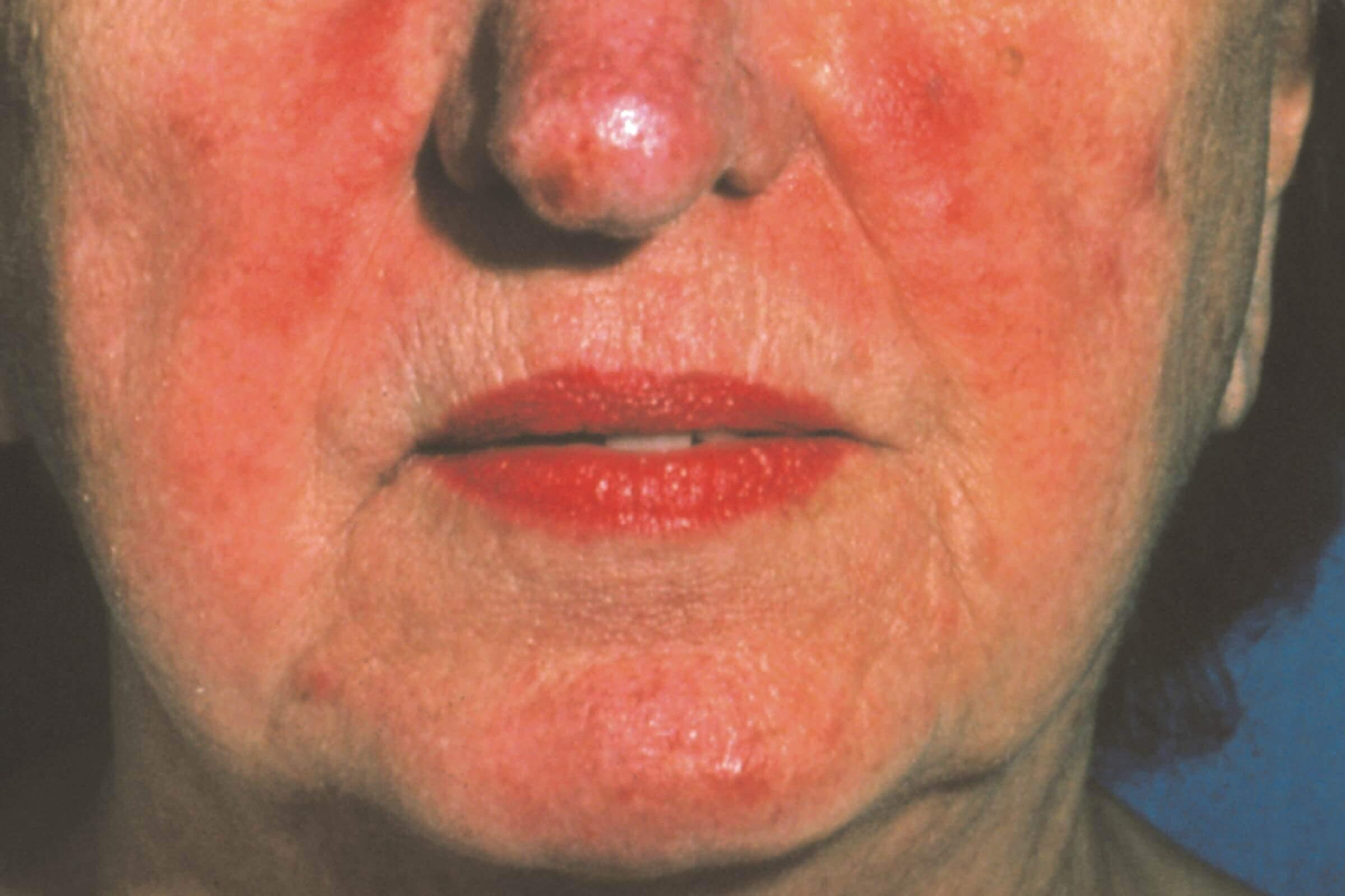 Can A Humidifier Help Your Skin? Rosacea advice from