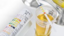 5 Warning Signs About Your Health - From The Colour Of Your Urine