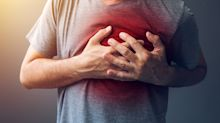Coronary artery disease: Ways to prevent the leading cause of death in the U.S., according to Dr. Oz
