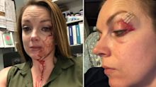 'I'm in a lot of pain': Retail worker shares gory photos after assault by shopper