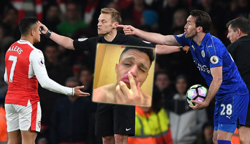 """Premier League: Sanchez zeigt seine """"Horror-Verletzung"""" nach Leicester-Spiel"""