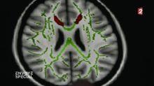 Addiction numérique : comment les écrans endommagent le cerveau