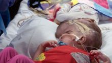 Separating conjoined twins is a stressful, high-risk operation. It's why I went into medicine