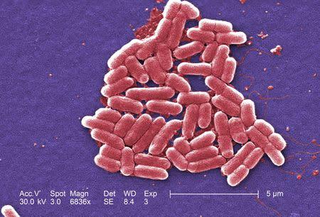 The mcr-1 plasmid-borne colistin resistance gene has been found primarily in Escherichia coli, pictured. REUTERS/Courtesy CDC