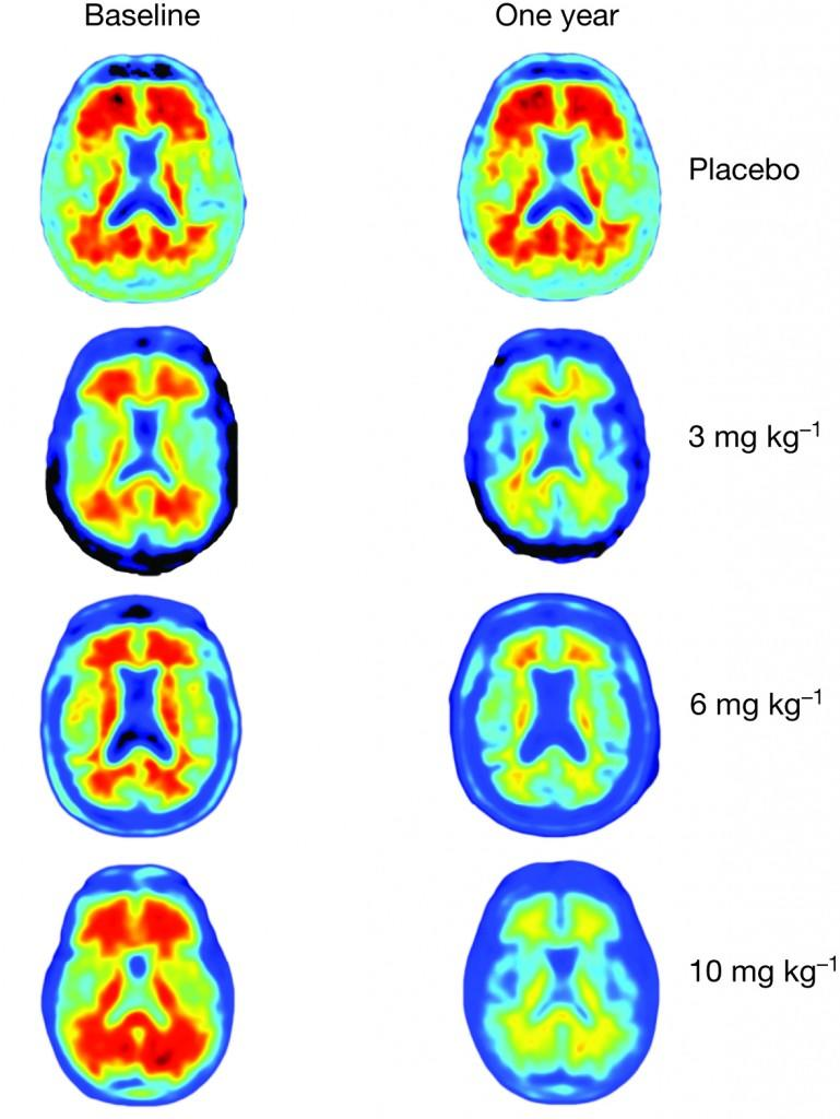 New Drug Clears Abnormal Brain Proteins Tied to Alzheimer's