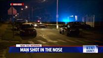 Man Shot in the Nose