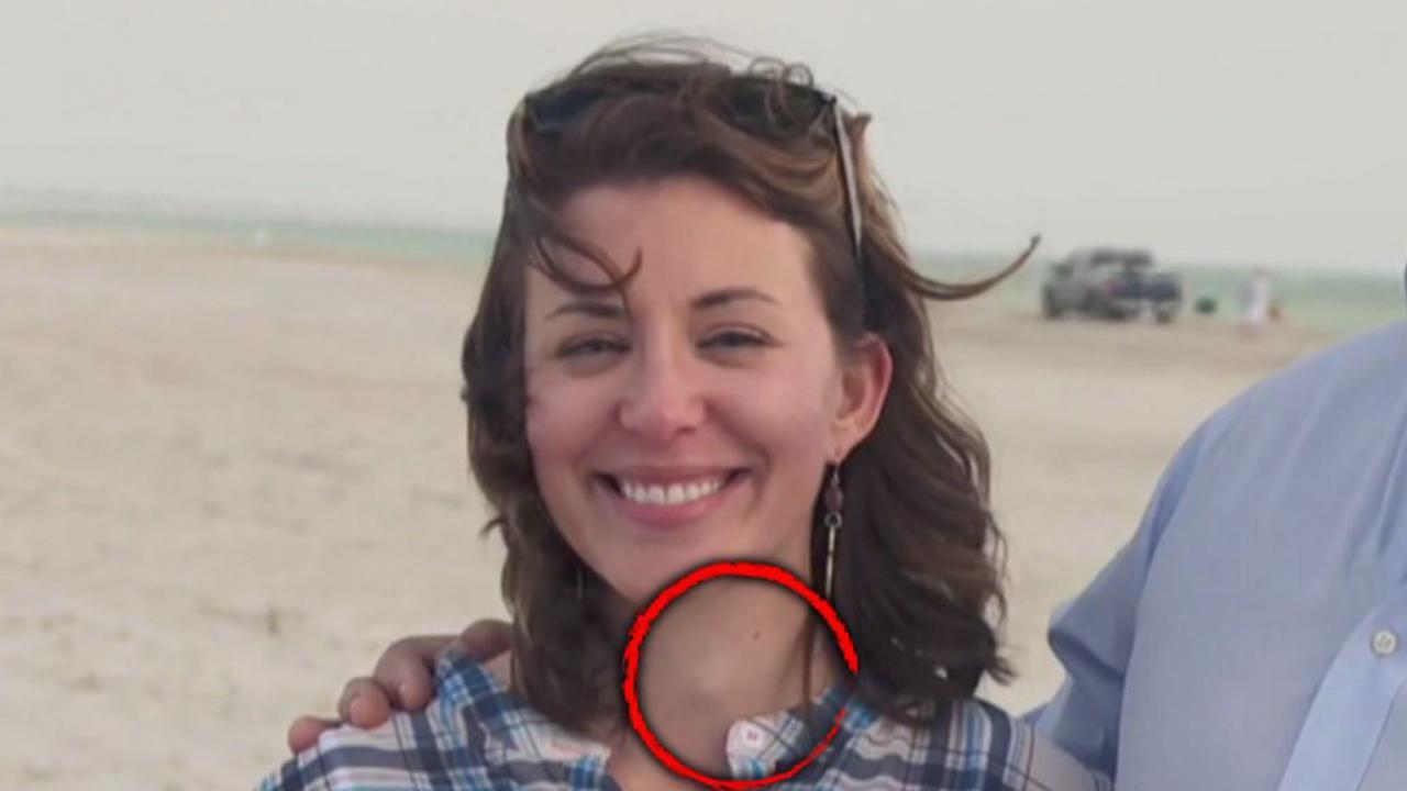 Woman Diagnosed With Cancer After Doctor Spots Lump On Her Throat During Hgtv Appearance