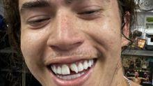 """Whindersson Nunes perde """"dente fake"""" em treino de luta; veja fotos"""