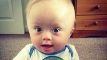 Mãe de garoto com síndrome de Down faz apelo para médicos mudarem vocabulário