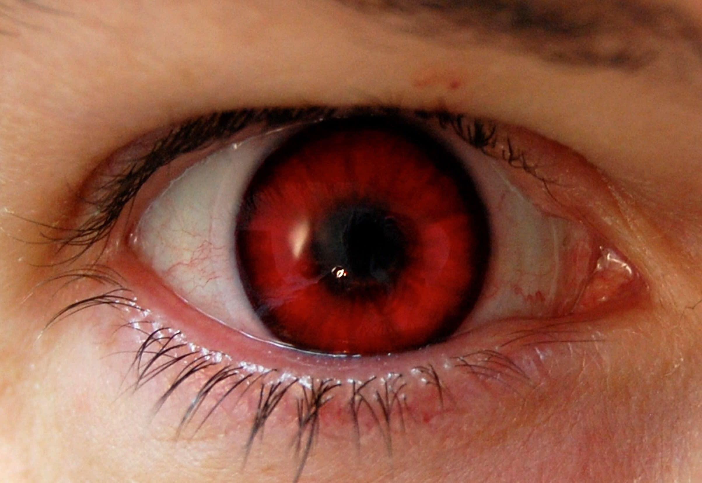 если зима фото глаза с красными зрачками каждой