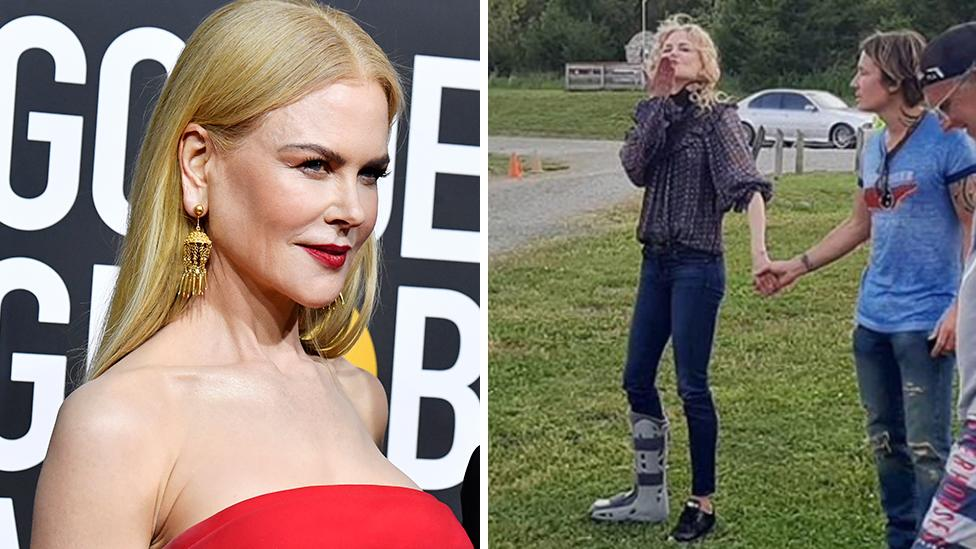 Nicole Kidman mystery foot injury sparks concern with fans