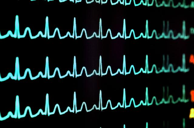 AliveCor wearables may detect unsafe potassium levels in the future