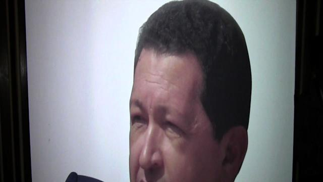 Chavez Recovering From Cancer Surgert in Cuba