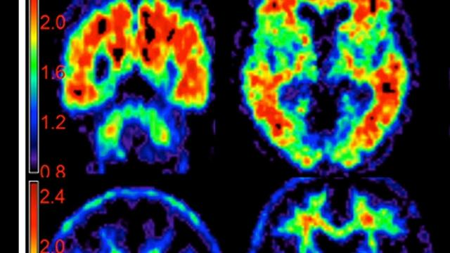 Alzheimer's prevention? New drug trial brings promise