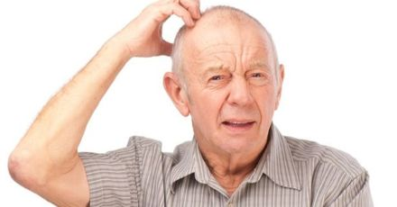 Scalp Psoriasis: Treatment That Might Surprise You