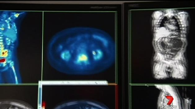 Genetic test used for prostate cancer