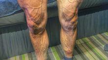 Así quedaron las piernas de Rojas tras la 7ª etapa de la vuelta: ¡parece que van a explotar!
